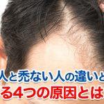 ハゲる人とハゲない人の違いと禿げない対策ハゲる4つの原因とは?