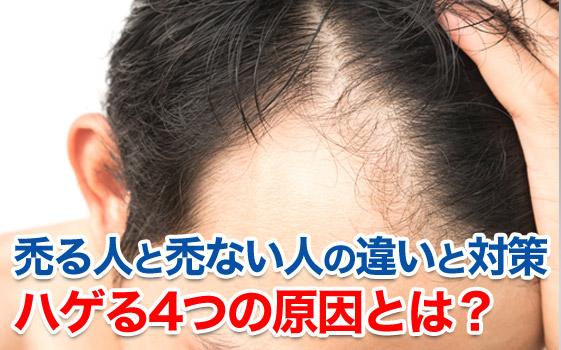 禿る人と禿ない人の違いと対策ハゲる4つの原因とは?