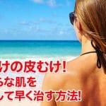 日焼けの皮むけ!まだらな肌をケアして早く治す方法!